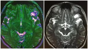 Mri brain inferior frontal dnet structure collage. There is approximately 1,6 cm inferior frontal gurus cystic structure in brain MRI ,it can be enlarged Stock Image