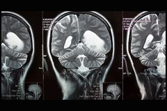 MRI of brain, left hemisphere tumor, coronal plane Stock Photos