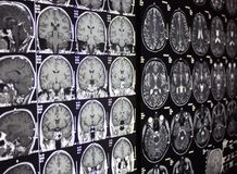 MRI of brain, MR Stock Photos