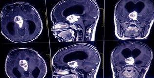 MRI Brain and orbits . showing a3.5cm. suprasellar mass cause mass stock image