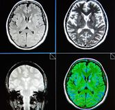 Mri brain periventricular lesion low grade neoplazm Stock Images
