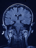 MRI brain Scan. Of the human brain in coronal view royalty free stock photo