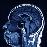 MRI Brain Scan. MRI sagital scan of the human brain royalty free stock image