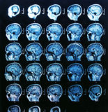 MRI Brain Scan Royalty Free Stock Image