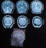 Mri Brain Scan Foto de archivo