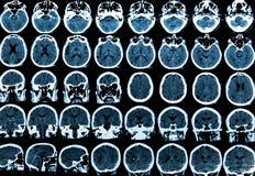 Mri Brain Scan. MRI scan of the human brain royalty free stock photos