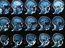 Mri Brain Scan Royalty Free Stock Photography