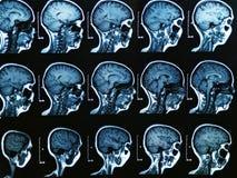 Mri Brain Scan. MRI scan of the human brain royalty free stock photography