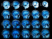 MRI Brain Scan Royalty Free Stock Images