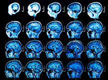 MRI Brain Scan. MRI scan of the human brain Stock Image