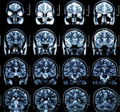 MRI Brain Scan. MRI scan of the human brain royalty free stock photo