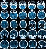 Mri Brain Scan. MRI scan of the human brain royalty free stock image