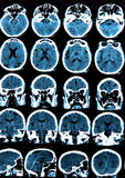 Mri Brain Scan. MRI scan of the human brain Stock Photography