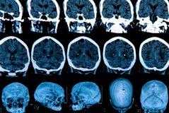 Mri Brain Scan. MRI scan of the human brain Stock Images
