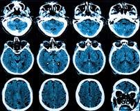Mri Brain Scan. MRI scan of the human brain stock photo