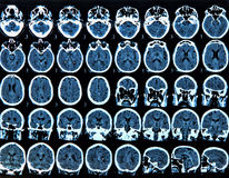 Mri Brain Scan Stock Photos