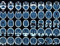 Mri Brain Scan. MRI scan of the human brain stock photos