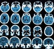 Mri Brain Scan Royalty Free Stock Photography