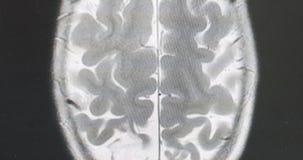 MRI brain scan, magnetic resonance image