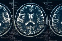 MRI brain scan or x-ray neurology human head skull tomography test. Close up brain negative scan royalty free stock photos