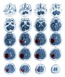 MRI brain show Brain tumor at right parietal lobe.  Royalty Free Stock Images