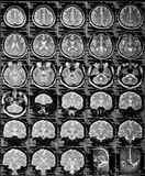 MRI Royalty Free Stock Photography