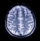 MRI of the brain Royalty Free Stock Image