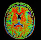 Mri brain stroke Stock Photos