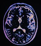 Mri brain stroke. The basis of modern medicine is modern diagnostic with possibilities to show area of pathology in different positions and anatomical stock photos