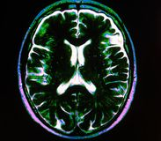 Mri brain stroke. The basis of modern medicine is modern diagnostic with possibilities to show area of pathology in different positions and anatomical Royalty Free Stock Images