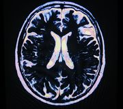 Mri brain stroke Royalty Free Stock Photos
