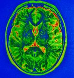 Mri brain  stroke Stock Image