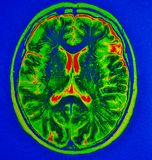 Mri brain  stroke. The basis of modern medicine is modern diagnostic with possibilities to show area of pathology in different positions and anatomical Stock Images