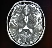 Mri brain stroke Royalty Free Stock Images