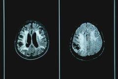 MRI brian del paciente de la demencia fotografía de archivo