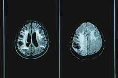 MRI brian of Dementia patient. MRI film for education Dementia brain diffusely disease and hemorrhagic infarction and vascular stock photography
