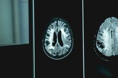 MRI Brian des Demenzkrankers stockbild