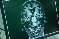 MRI brian do paciente da demência imagens de stock