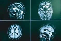 MRI brian do paciente da demência fotografia de stock royalty free