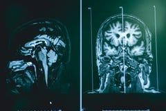 MRI brian do paciente da demência imagem de stock royalty free
