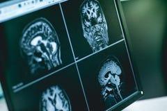 MRI brian do paciente da demência fotografia de stock