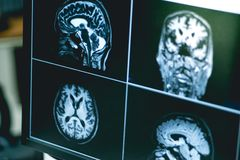 MRI brian do paciente da demência imagem de stock