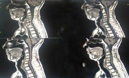 MRI C脊椎 图库摄影