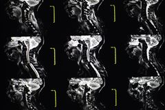 MRI C-Spine royalty free stock images