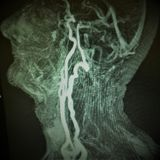 Mri carotid artery complete occlusion. There is very dangerous pathology as complete occlusion of the left internal carotid artery just distal to the carotid Stock Photos