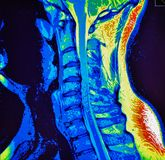 Mri of cervical spine stenosis Royalty Free Stock Images