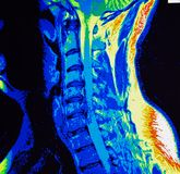 Mri of cervical spine stenosis Royalty Free Stock Photography