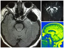 Mri clipping artifact bilateral cerebral aneurysm Stock Images