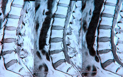 MRI de la espina dorsal lumbar fotos de archivo