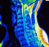 Mri de la estenosis cervical de la espina dorsal Fotografía de archivo libre de regalías